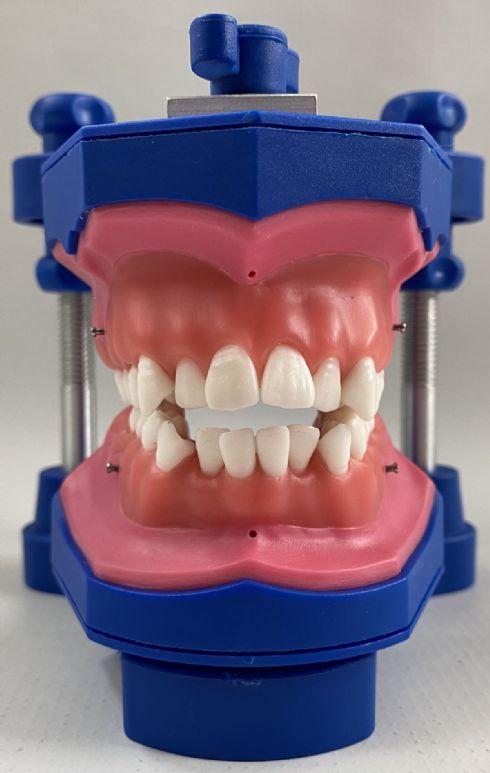 Classe I com apinhamento moderado sup. inf.  mini-implante, com mordida aberta de 4mm